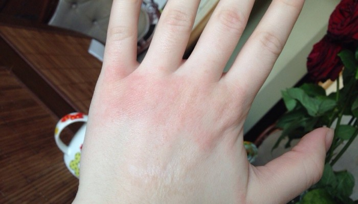 allergichesky-dermati-2