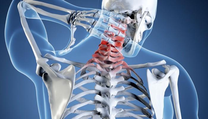 Унковертебральный-артроз-шейного-отдела-позвоночника