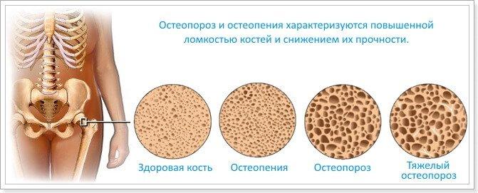 27160404-diabet-osteoporoz-i-preparaty-kalciya
