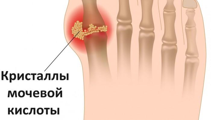 6.-Skoplenie-kristalov-mochevoy-kislotyi
