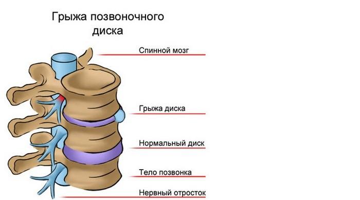 Gryzha-pozvonochnogo-diska
