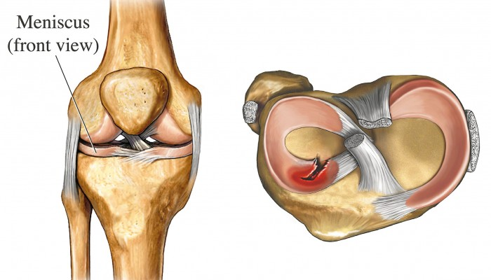 Illustration of a torn meniscus Shown are the right knee, anterior view left, and a radial tear to the anterior horn of the lateral meniscus, seen in a superior view of the tibial plateau right