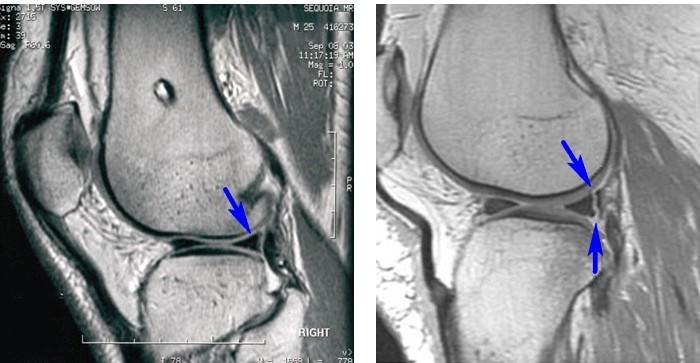Ris.5-Razryiv-zadnego-roga-meniska-na-rentgenovskom-snimke