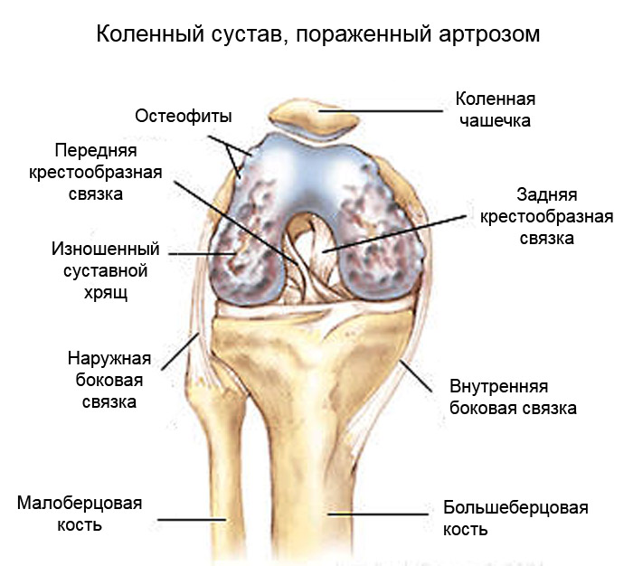 arthritic-knee-1