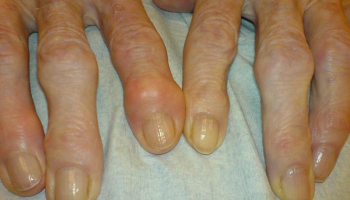 Чем лечить суставы рук