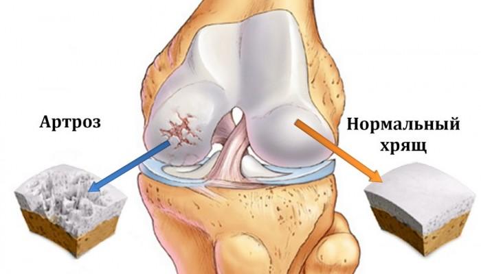 Почему щелкают суставы в коленях