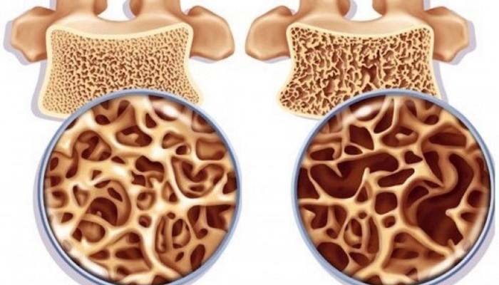 osteoporoz-3