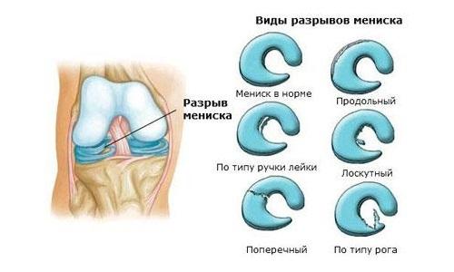 razryvy-meniskov-kolennogo-sustava-vidi