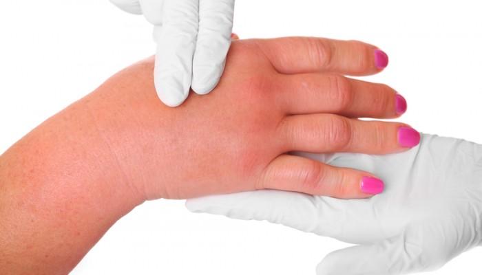 Опухли суставы пальцев рук как лечить