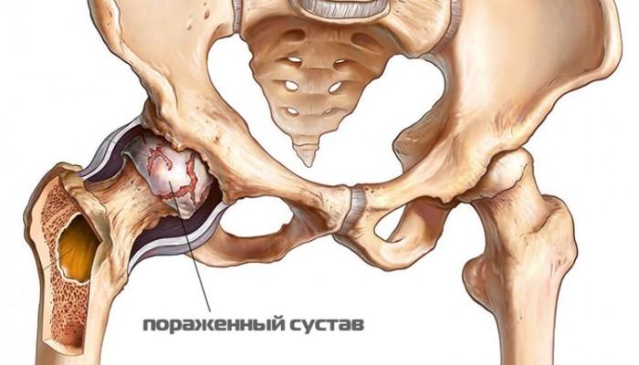 1428419252_tazobedrennyy-sustav-porazhennyy-artritom-min