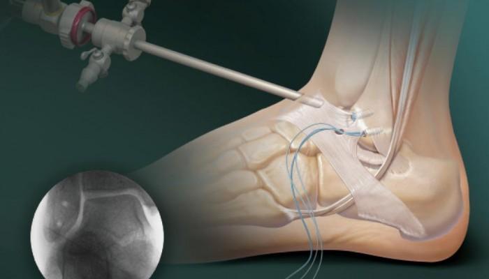 Artroskopiya-golenostopnogo-sustava