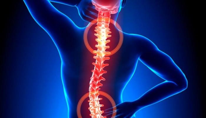 Osteohondroz-i-ego-zabolevanija