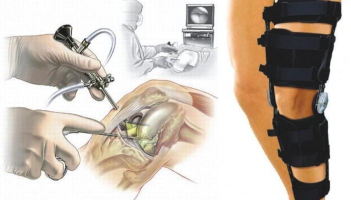 artroskopia1