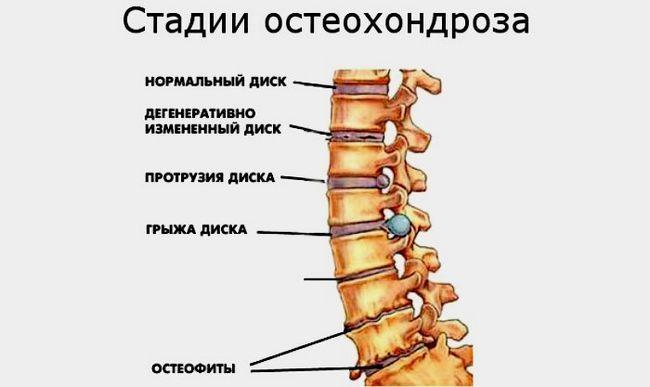 kak-lechit-osteohondroz-shejnogo-otdela_3