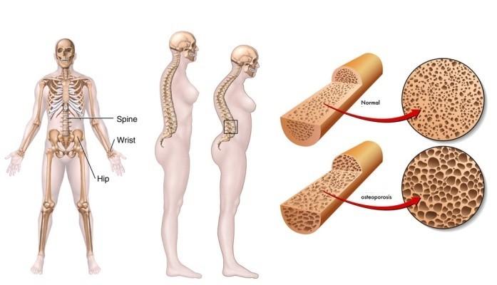 prichiny-vozniknovenija-osteoporoza-u-zhenshhin_2