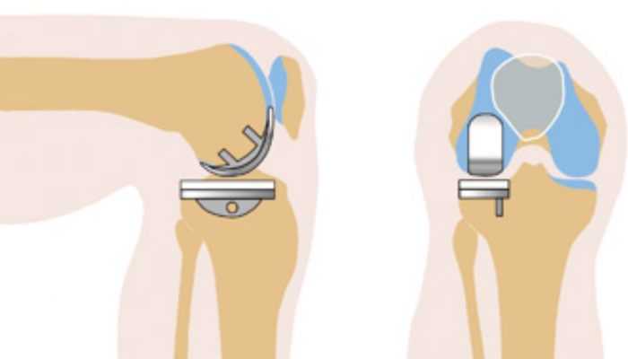 protez-kolena