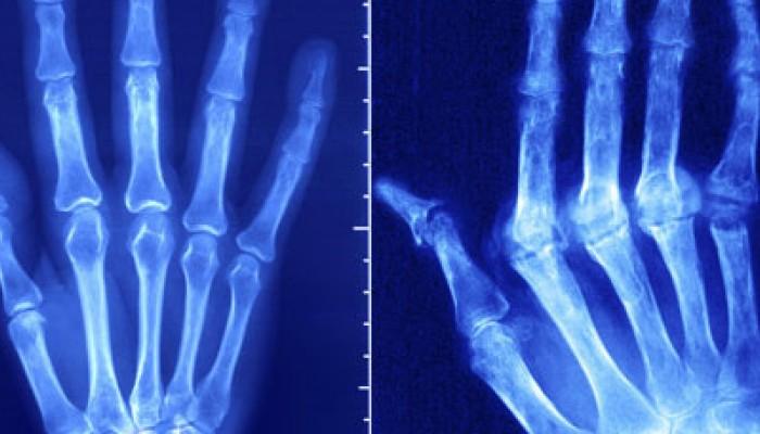 rheumatoid-arthritis-1728x800_c