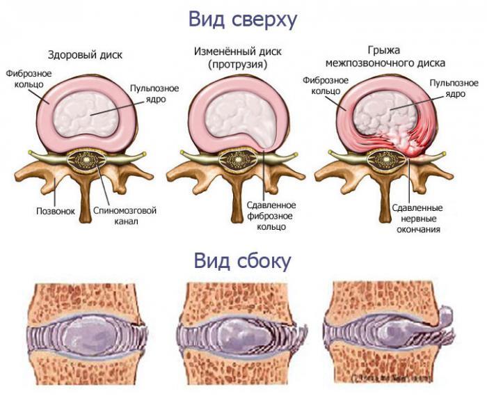 simptomi-protruzii-pozvonochnika-poyasnichnogo-otdela