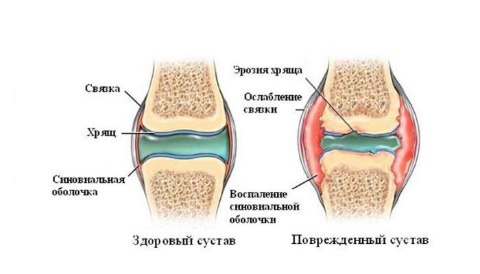 sirovatka-krovi-i-sinovialnaya-gidkost-pri-artritah