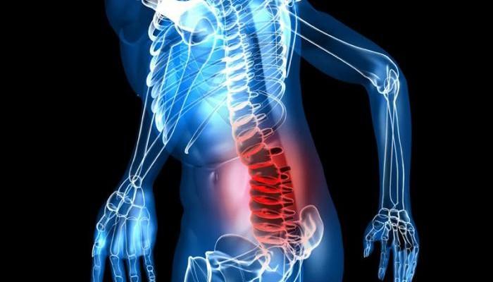Стрельнуло в спину ходить больно чем лечить