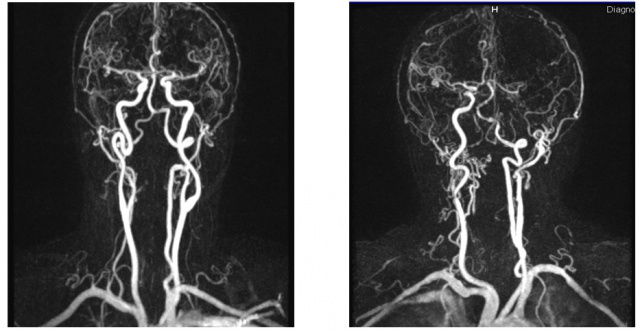 Patologicheskaya-izvitost-sheynykh-i-intrakranialnykh-otdelov-pozvonochnykh-arteriy