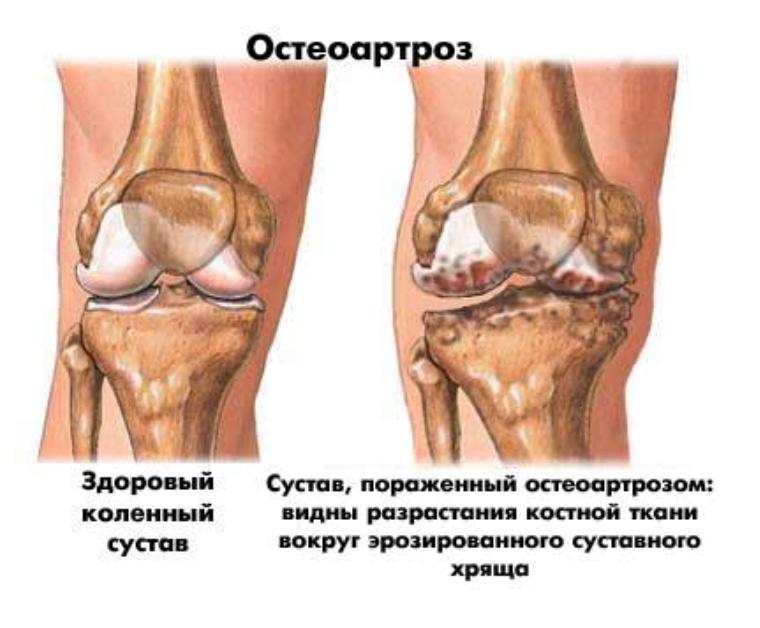 artroz (1)