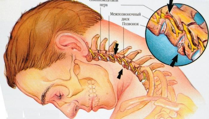 shejnyj-osteohondroz