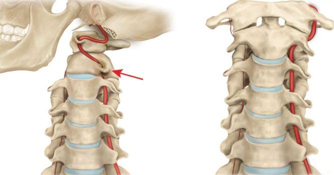 sindrom-pozvonochnoy-arteriy1