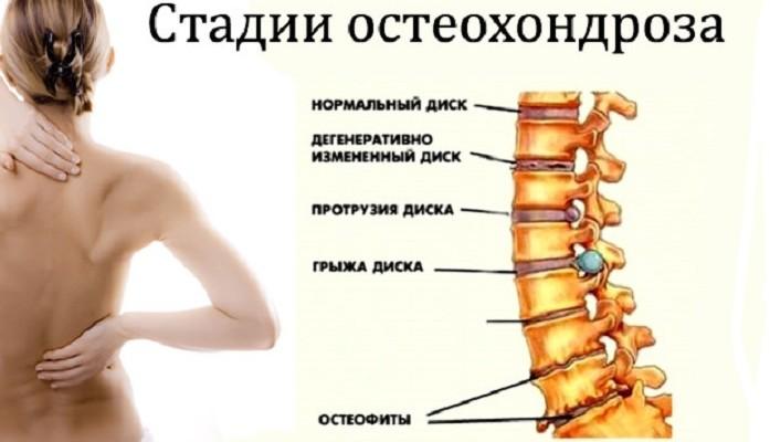 stadii-osteohonroza