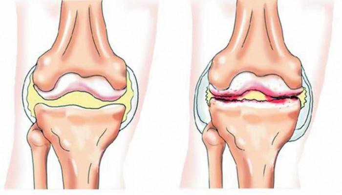 Препараты при артрозе коленного сустава