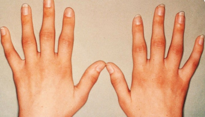 artroz-palcruk-le-2