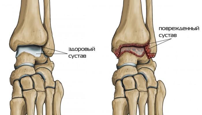 1427396159_kak-vyglyadit-artroz-v-golenostope