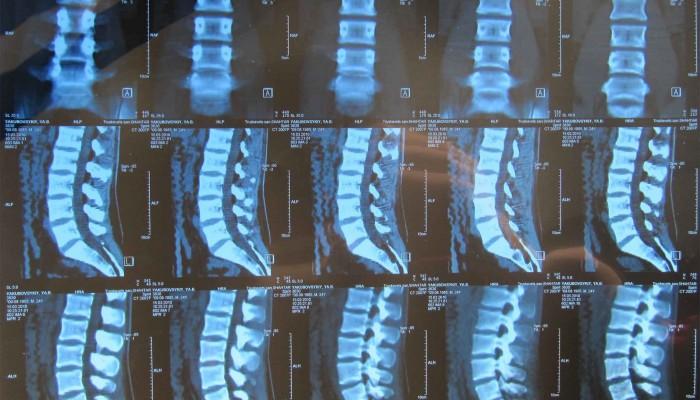 23378755-kt-osteohondroza
