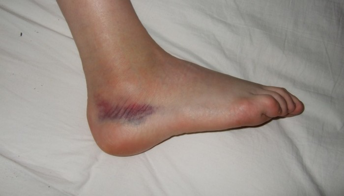 ankle_sprain_rick_kaselj-1024x768