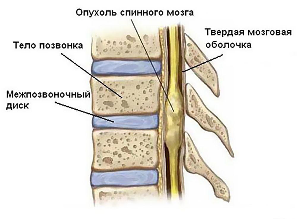 opukholi-spinnogo-mozga-i-pozvonochnika-u-detej1
