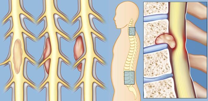 spinal-tumors