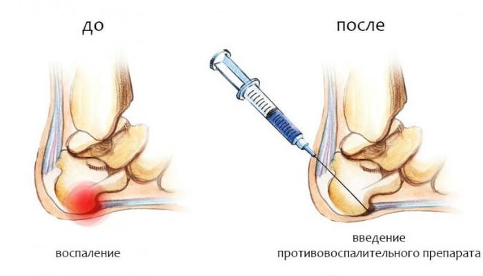 vylechit-pyat-shpor-4