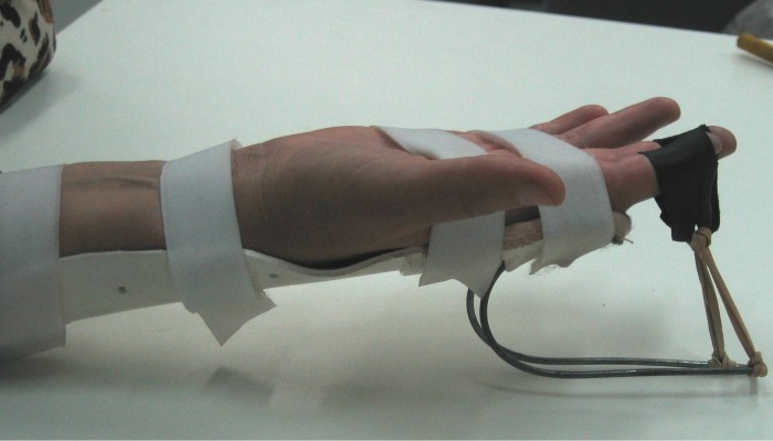 5.-Fizioterapiya-pri-artroze