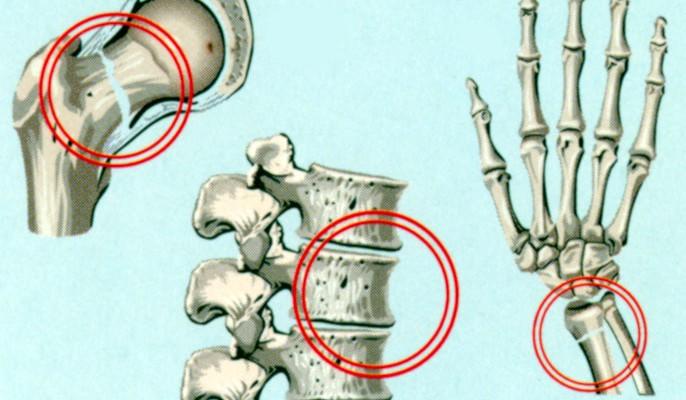 osteoporoz3