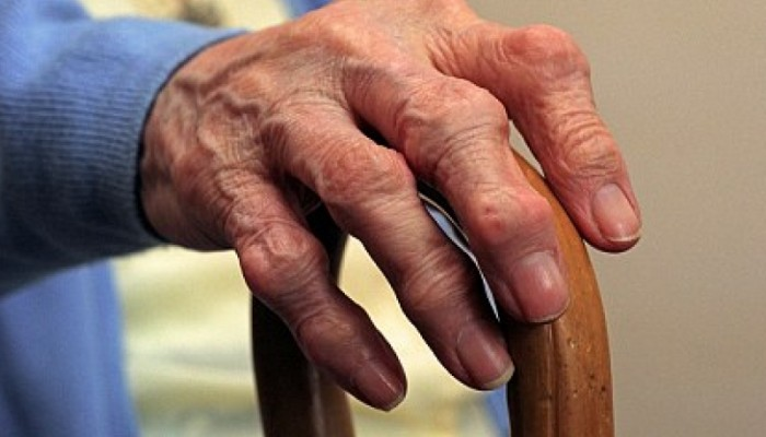 revmatoidnyj-artrit