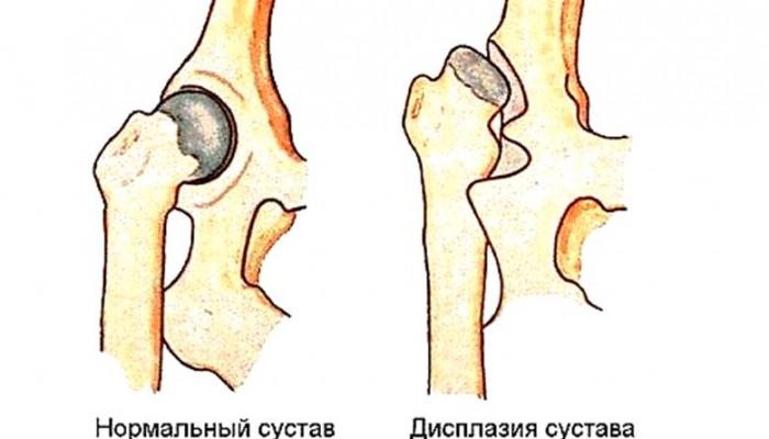 Ядра окостеніння тазостегнових суглобів норма