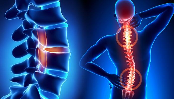 spine-(1)1