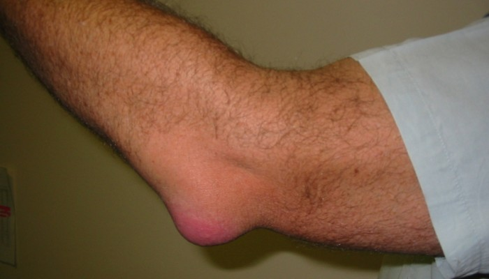 75675334_large_3925073_Bursitis_Elbow_WC1