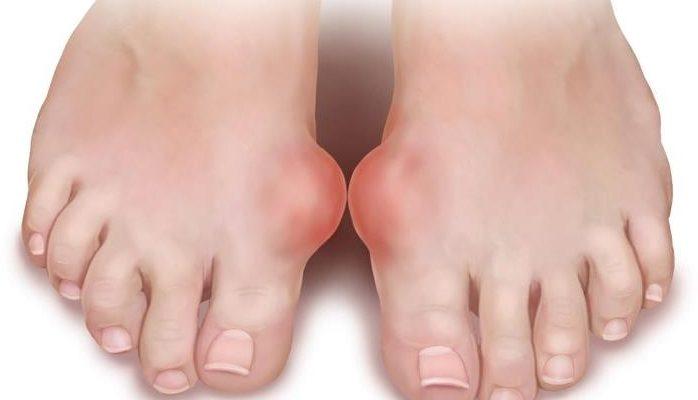 artrit-pal-tsa-nogi