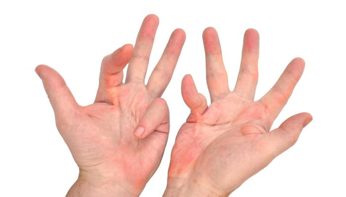 dupuytrens-contracture-hand-condition