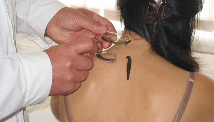 girudoterapiya-pri-osteoxondroze