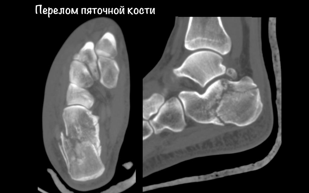 oskolchaty_perelom_piatochnoi_kosti_2