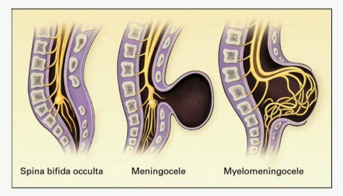 spinabifidatipleri