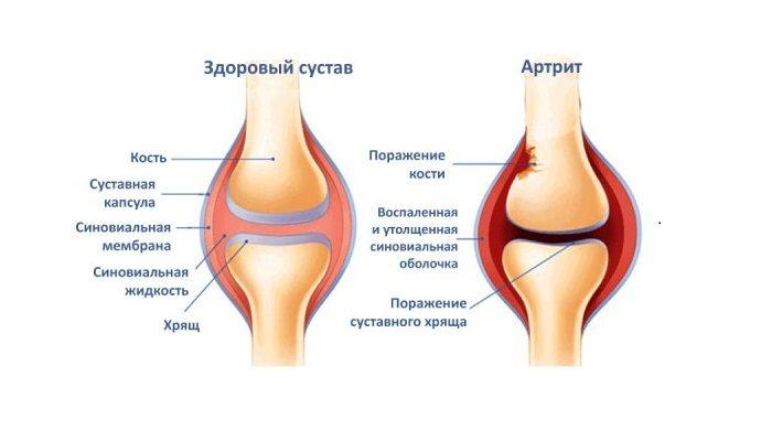 22610440-artrit-kolena-pervaya-pomosch