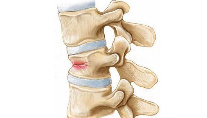 27292755-lechenie-osteohondroza-artrita-artroza